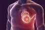 痛风药物丙磺舒可以帮助治疗心力衰竭