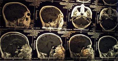 三个真实的脑肿瘤故事