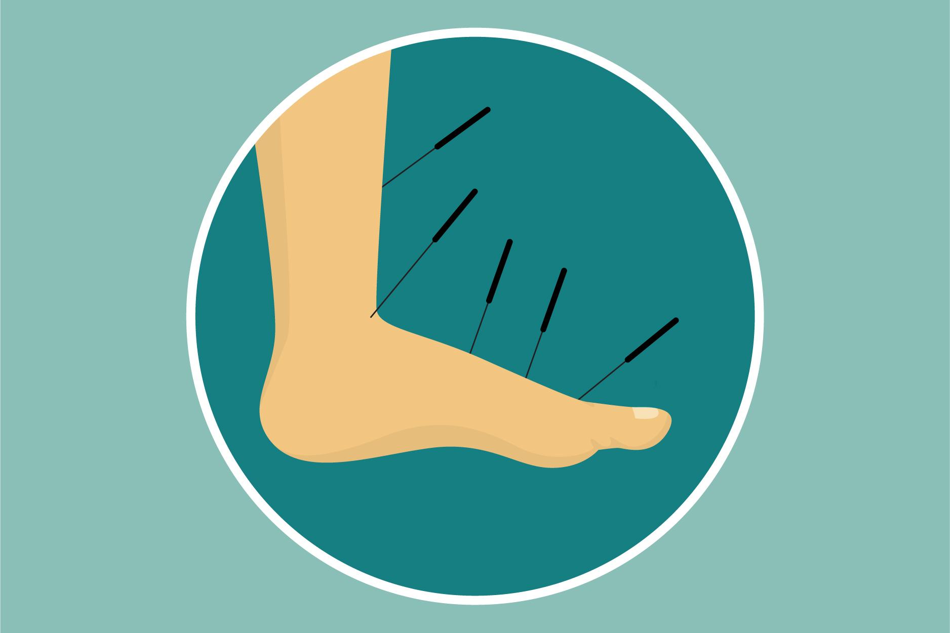国外网站列出最痛苦的5种手术,你同意吗