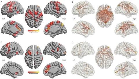 复旦领衔!首次揭示抑郁症和睡眠问题的脑调控机制