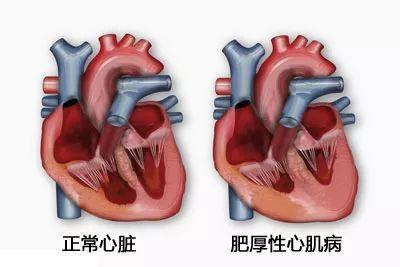 年轻人猝死多因这种心脏病!医生提醒:一人发病全家筛查