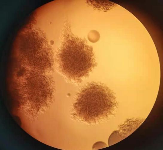 全国已有三地报告炭疽确诊病例,如何防?